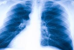 X-ray kuva ihmisen keuhkot Kuvituskuvat