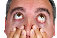 shocked eyeballs face - stock photo