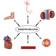 diabetes mellitus affected organs - stock illustration
