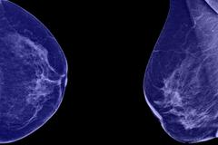 Lateral mammogram of female breast. in higher magnification you may see  smal Stock Photos