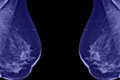 lateral mammogram of female breast. in higher magnification you may see  smal - stock photo