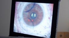 MACRO: Laser eye surgery, step 4 Stock Footage
