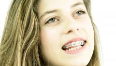 Cute female teenager with dental braces smiling Stock Footage