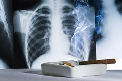 Radiography and cigarettes Stock Photos