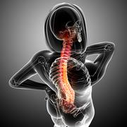 Female back pain anatomy Stock Illustration