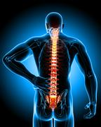 Stock Illustration of Male back pain anatomy