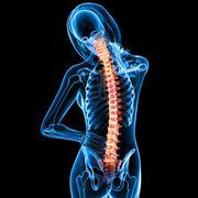 Female back pain anatomy - stock illustration