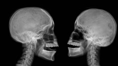 Two arguing skulls. Stock Footage