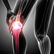 Female knee pain anatomy - stock illustration