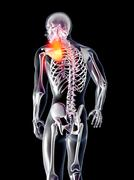 anatomy - hurting shoulder. - stock illustration