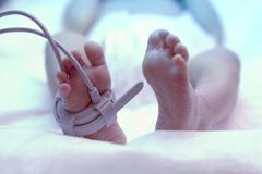 Feet of new born baby under ultraviolet lamp in the incubator Kuvituskuvat