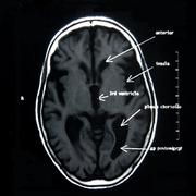 Radiological Diagnostics - stock photo