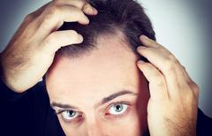 Man controls hair loss - stock photo