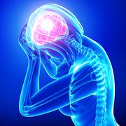 Female brain pain on blue - stock illustration