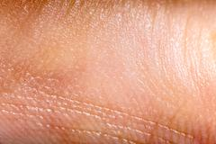 Close up human skin. Macro epidermis Stock Photos