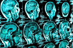 Ct scan of the human brain tile Stock Photos