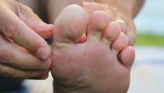 Man Discovers Itchy Athletes Foot Growth On Toes Stock Footage