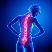 Female back pain anatomy Stock Illustration