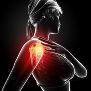 Anatomy of female Shoulder pain Stock Illustration
