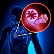 Alveoli Detail Asthma - Chronic Inflammatory Disease - stock photo