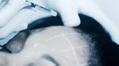 Kosmeettinen hoito klinikka nainen saada botox injektio kasvoihin Arkistovideo
