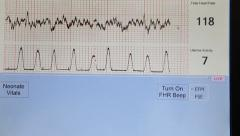 Obtaining an electrocardiogram Stock Footage