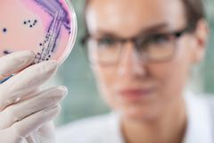 microbiologist holding a petri dish with bacteria - stock photo
