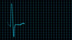 Stock Video Footage of Cardiogram cardiograph oscilloscope screen with grid blue loop