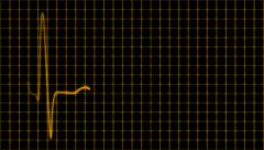 Stock Video Footage of Cardiogram cardiograph oscilloscope screen with grid orange yellow loop
