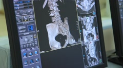MRI scann (CT shot on display) Stock Footage