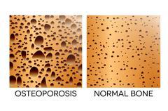 osteoporosis, unhealthy bone - stock illustration