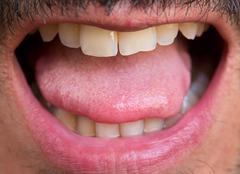 Caucasian man open mouth Stock Photos
