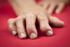 rheumatoid arthritis hand - stock photo
