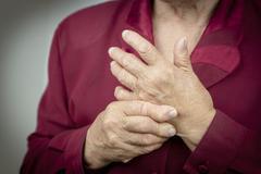 rheumatoid arthritis hands - stock photo