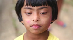 Portrait of young Sri Lankan girl with down syndrome in Ella, Sri Lanka. - stock footage