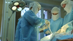 Oncological surgery: surgeons operate patient Stock Footage