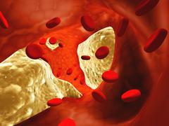 Atherosclerosis - stock photo