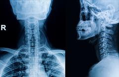 X-ray image of cervical spine, neck x-ray image Stock Photos