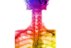 colorful  x-ray t-l spine(thoracic-lumb ar spine) - stock photo