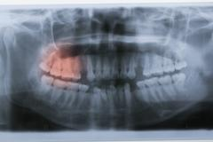 Panoramic dental x-ray with red painful area Stock Photos