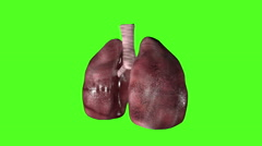 Health Research transplant Medicine motion Graphics Technology lungs chromakey Stock Footage