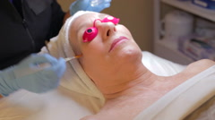 Woman Having Dermo Abrasion Cosmetic Treatment At Spa Stock Footage