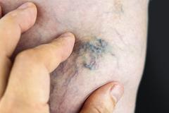 varicose vein - stock photo