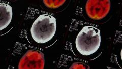 4k Doctors study head PET-ct skull brain scan X-ray film for analysis disease. Stock Footage