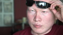 Albino young man takes off sunglasses Stock Footage