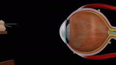 MYOPIA  NORMAL EYE Stock Footage