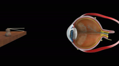 HYPERMETROPIA NORMAL EYE Stock Footage