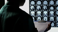 Examining scull brain X-ray scan, taking notes, making diagnosis - stock footage