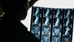 Studying MRI spinal scan, spine x-ray, doctor making a diagnosis, click for HD Stock Footage