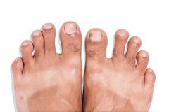 Mark of sunburn on bare foot Stock Photos
